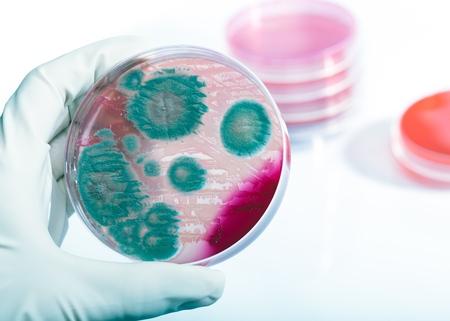 과학자의 손에 박테리아 Listeria monocytogenes와 페트리 접시
