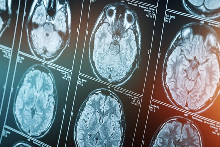 Magnetic resonance scan of the brain