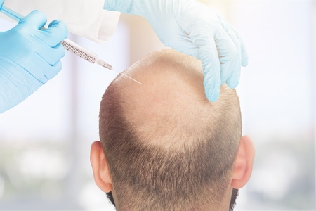Mature man with problem hair loss