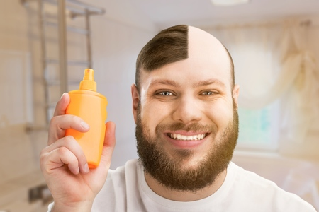 Male or hair loss concept Stock fotó