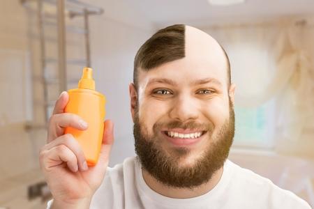 Male or hair loss concept Archivio Fotografico