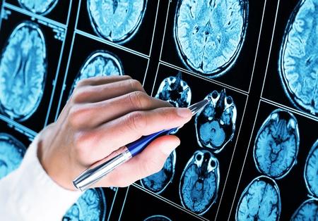 Arts met pen naar de röntgenfoto van de hersenen te wijzen