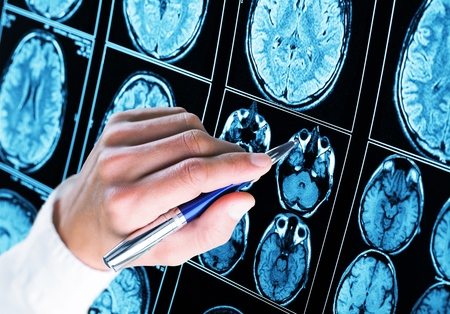 Doctor pointing with pen to the brain x-ray
