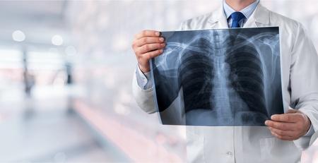 Lungenradiographie-Konzept. Radiologie-Arzt, der den Röntgenfilm der Brust des Patienten im Krankenhauszimmer untersucht. Standard-Bild
