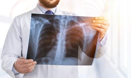 Lekarz bada film rentgenowski klatki piersiowej pacjenta w szpitalu. Zdjęcie Seryjne