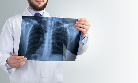 Doctor looking chest x-ray film in hospital.