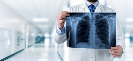 Doctor looking chest x-ray