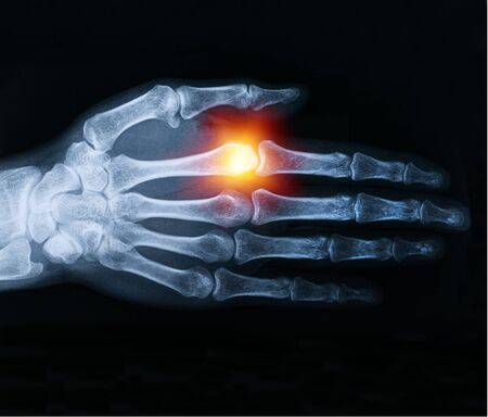 x-ray of human hand image with sunlight
