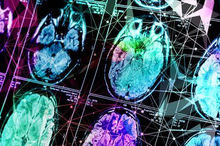 Imagen de rayos X de la tomografía computarizada del cerebro