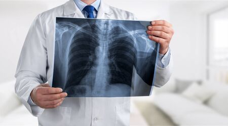 Doctor with radiological chest x-ray film for medical diagnosis on patient's health on asthma, lung disease and bone cancer illness, healthcare hospital service concept           - Image Foto de archivo