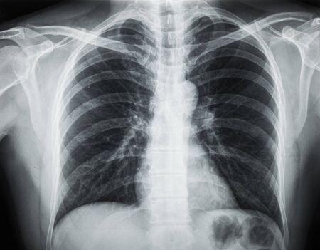 Radiografía de tórax Foto de archivo