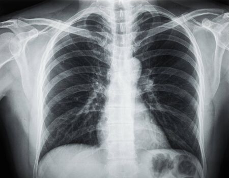 X-Ray of the Chest Stock Photo
