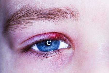 stye kid eye red skin barley bacteria virus Foto de archivo