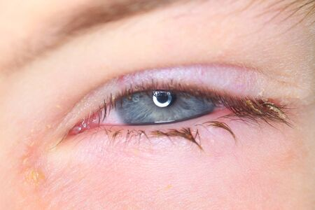 Belarus, Minsk, 2019. Conjunctivitis is a viral bacterial infection in the eye of a boy.