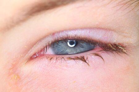 Bielorrusia, Minsk, 2019. La conjuntivitis es una infección bacteriana viral en el ojo de un niño.