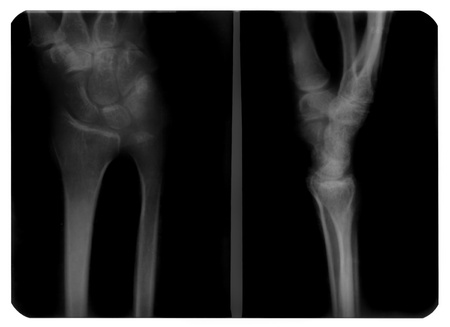 healed: X-ray photograph of human hand has a healed fracture of lunate bone. Stock Photo