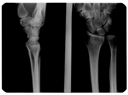 X-ray photograph of human hand has a fracture of lunate bone.