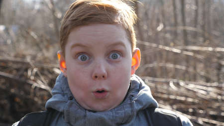 Portrait of ginger child with freckles showing surprise and amazement outdoor. Little red-haired boy looking into camera with wow expression. Close up shocked male face of small kid. Slow motion