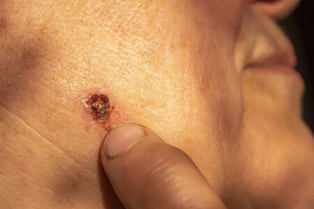 Cauterized wart on an old woman's face. Grandma points to the scar after removing the wart. Sore on the skin.