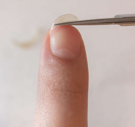 A person cuts his nails with small scissors. Men's manicure. A man cuts off a large overgrown nail