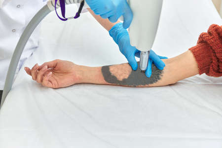 laser tattoo removal on woman's arm Stock fotó