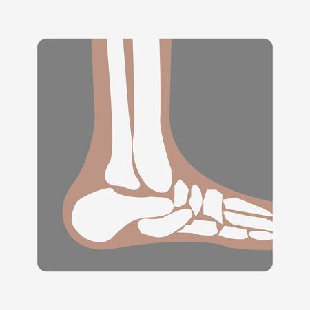 Foot Bones joint Illustration