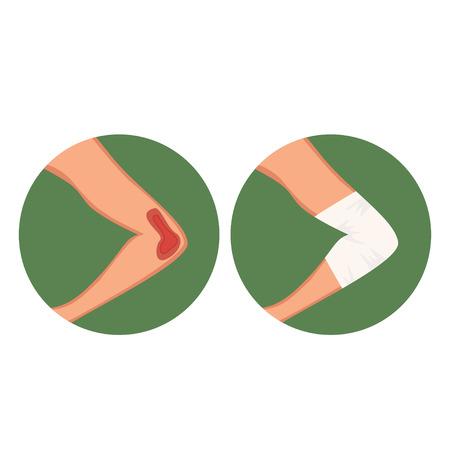 Open gap, injured elbow and medical dressing vector Illustration