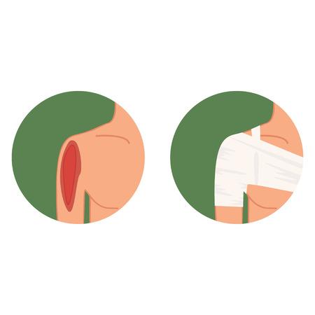 Lacrima aperta, spalla danneggiata e vettore di medicazione Vettoriali