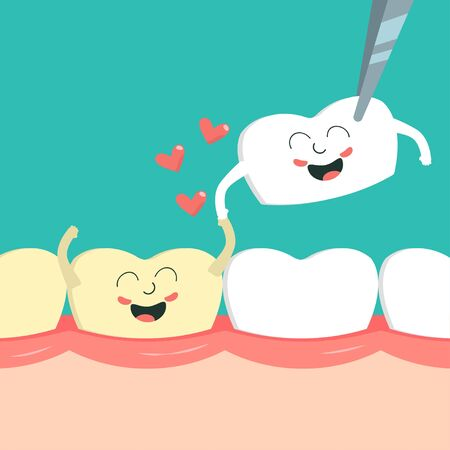 Smiling discolored tooth on gum and new veneer in love. Dental restoration Illustration