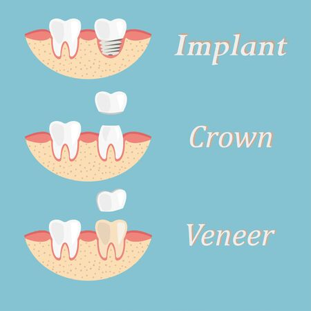 Teeth procedure of implant, crown, veneer restoration. Process stomatology prosthesis Vecteurs