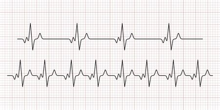 Cardiogram. Heart beat. Heartbeat line. Electrocardiogram. Vector Vektorgrafik