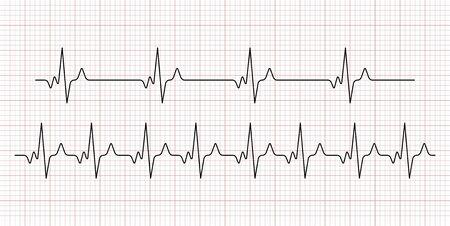Cardiogram. Heart beat. Heartbeat line. Electrocardiogram. Vector Vector Illustration