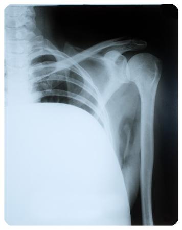 luxacion: Imagen de rayos X de la articulación del hombro.