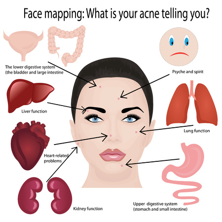 Face mapping. What your acne telling you info-graphic