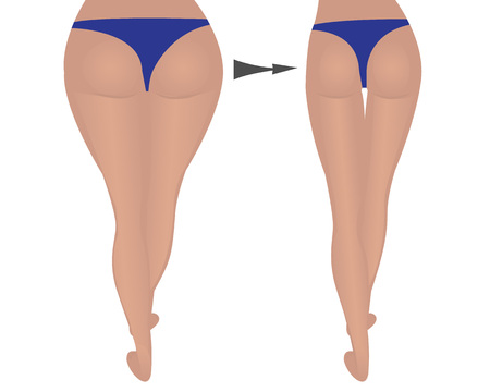 of women. Fat and slim. weight loss. fitness. comparison. vector