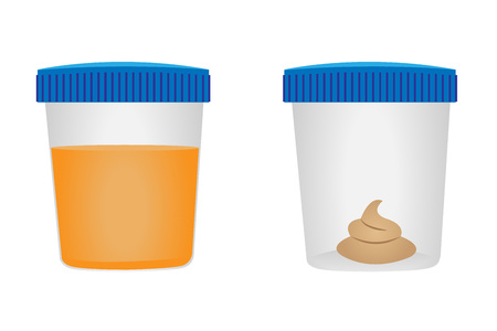 Sgabello e test della urina. Visita medica. Illustrazione vettoriale