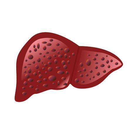 Liver affected by cirrhosis vector illustration