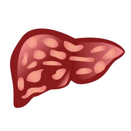 human liver: Liver affected by cirrhosis vector illustration