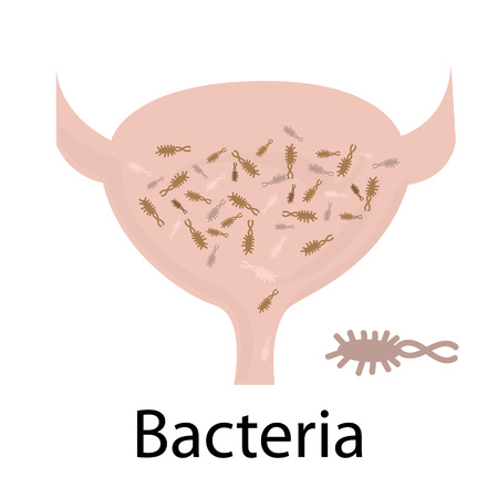 Bacteria. Urinary tract infection. Illustration