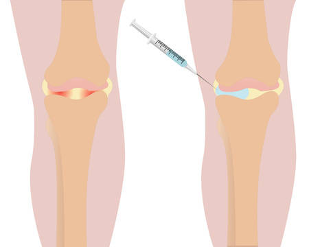 Knee injection illustration.