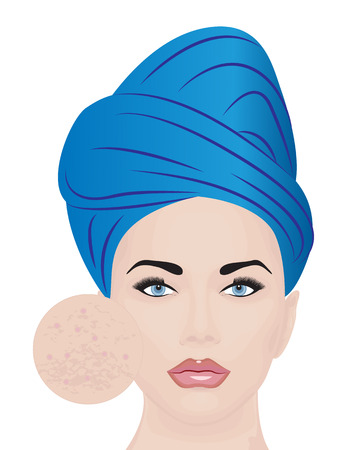 Vector illustration of a girl having skin problems