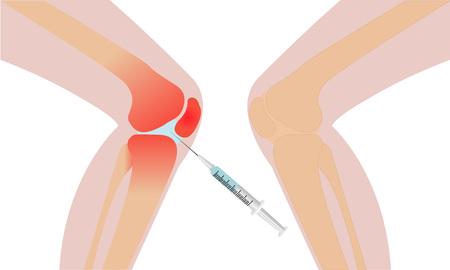 Recupero dell'illustrazione di vettore di rossore di infiammazione dell'iniezione del ginocchio Archivio Fotografico - 86380491