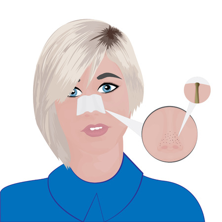 Treatment Blackheads on Nose vector illustration showing skin problems