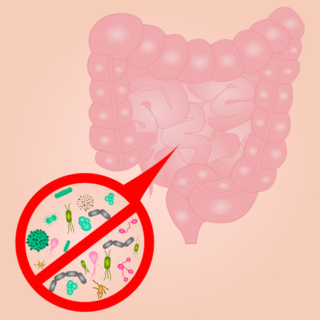 Stop Bacterial overgrowth in small  intestine sign vector illustration Vectores