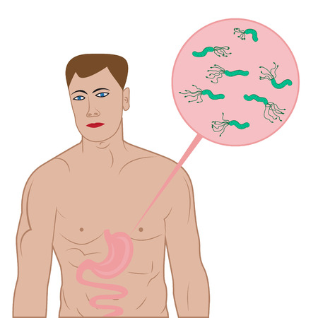 Stop helicobacter in stomach sign vector illustration in cartoon style