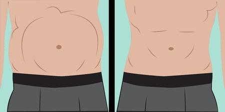 Abdominal bloating vector illustration Illustration