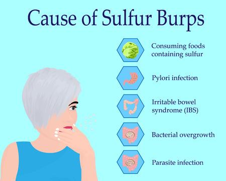 Causes de Sulphur Burps vector illustration