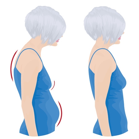 Female showing bad and good posture illustration. Ilustração