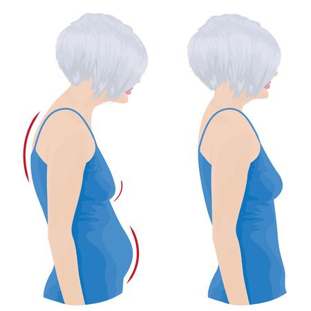 Female showing bad and good posture illustration. Stock Illustratie