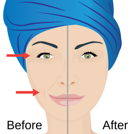 Woman with aging face treatment, in Before and after illustration. Illustration